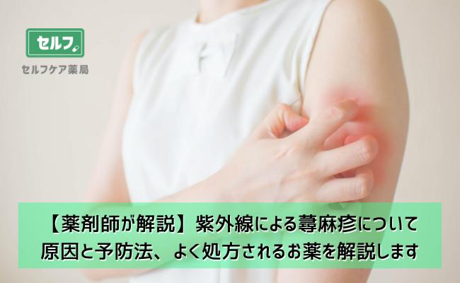 【薬剤師が解説】紫外線による蕁麻疹について 原因と予防法、よく処方されるお薬を解説します